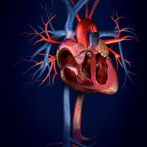 Manejo Nutricional del Paciente Pediátrico con Cardiopatía Congénita Por: RitaGodoy
