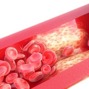 Calcificación Vascular Por: BrianMariños